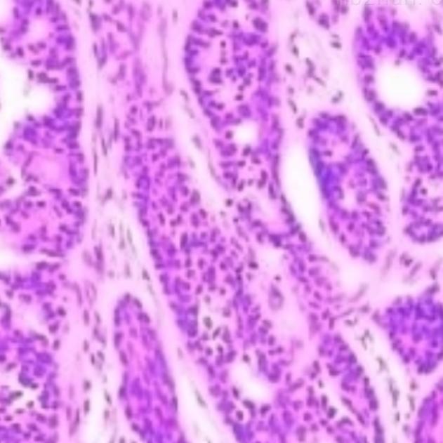 IHC免疫组化检测