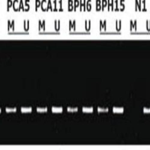 甲基化检测(MSP)