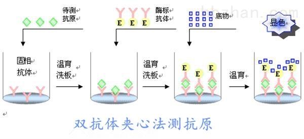 <strong><strong>小鼠糖原磷酸化酶MM(GP-MM)elisa试剂盒</strong></strong>